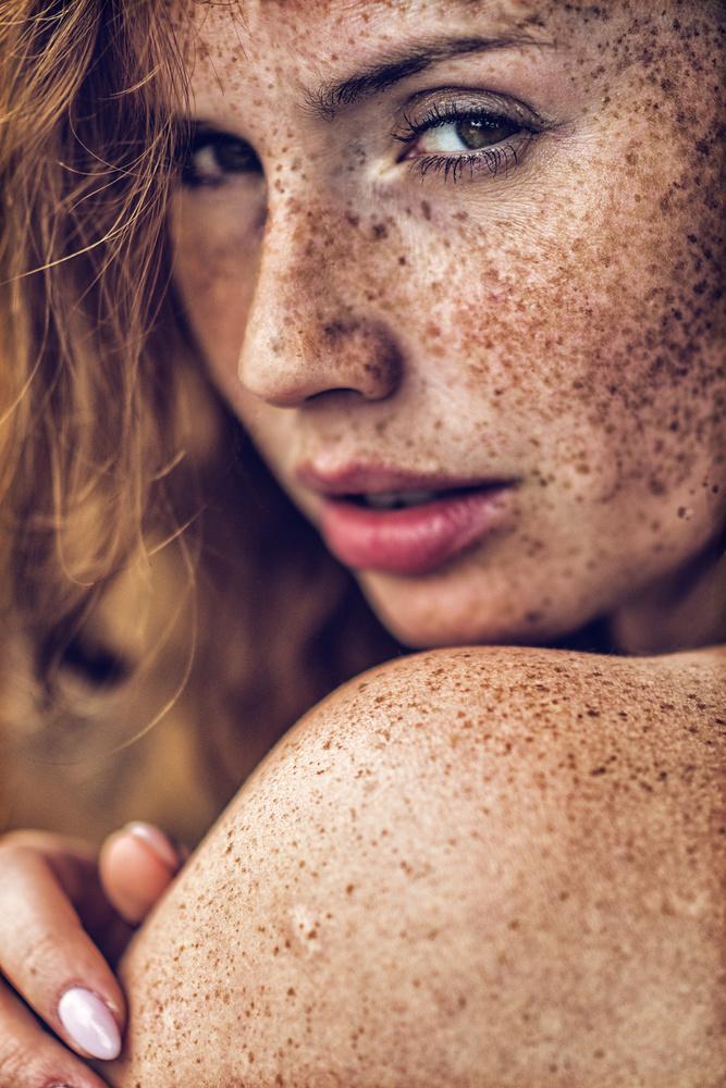 A piece of fine art art photography titled Freckles by Lech Radecki