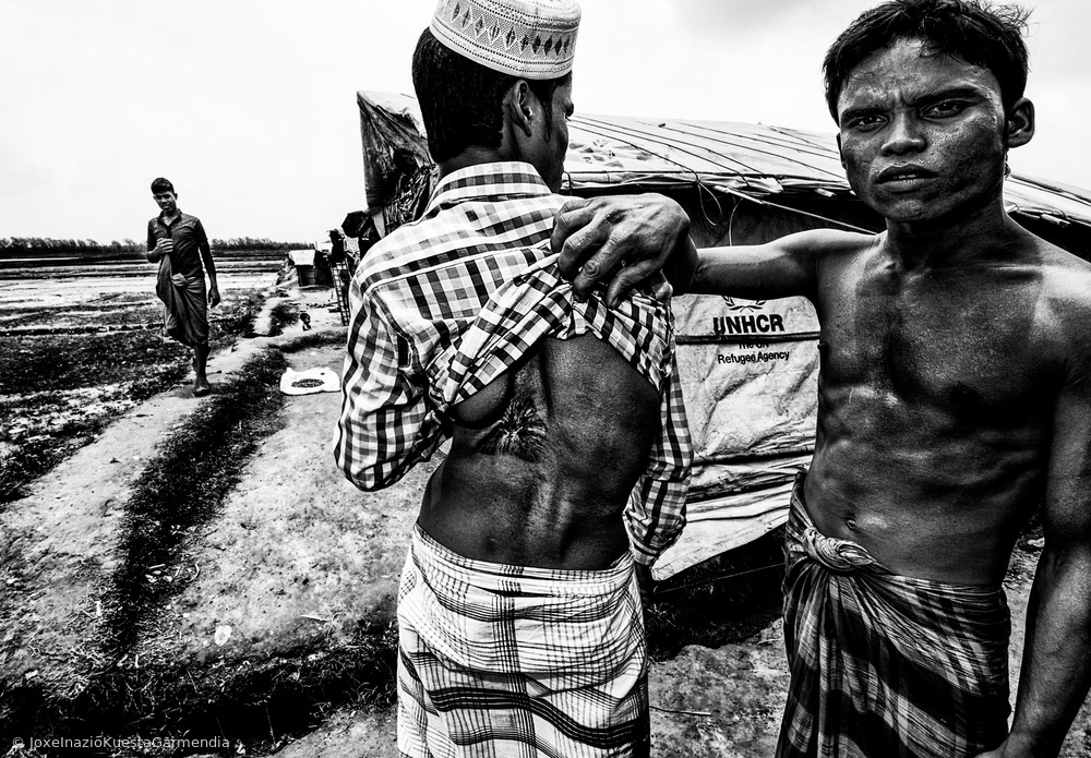 Rohingya refugee showing the impact of a bullet in his friend´s body - Bangladesh