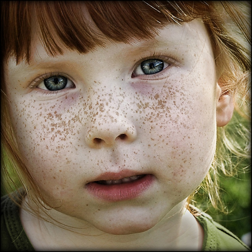 A piece of fine art art photography titled Beautiful Freckles by Lifeware