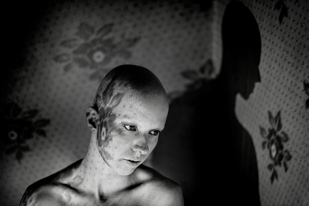 A piece of fine art art photography titled Alopecia by Miloš Nejezchleb
